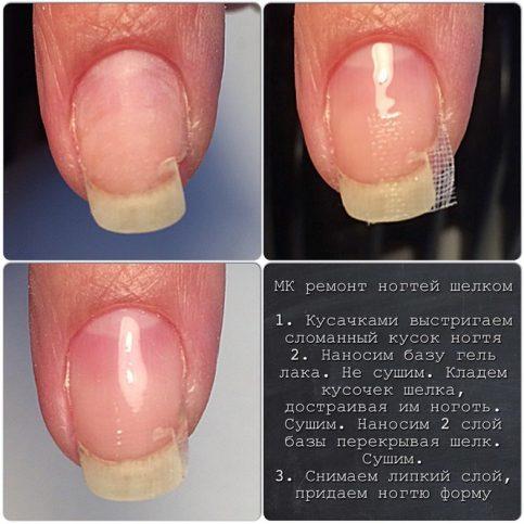 Испортились ногти после гель лака как лечить